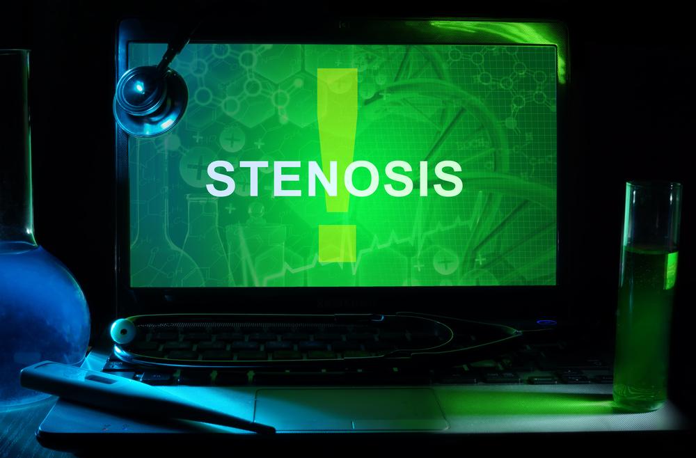stenosis.jpg