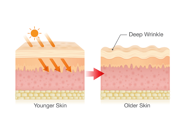 sun damage to skin