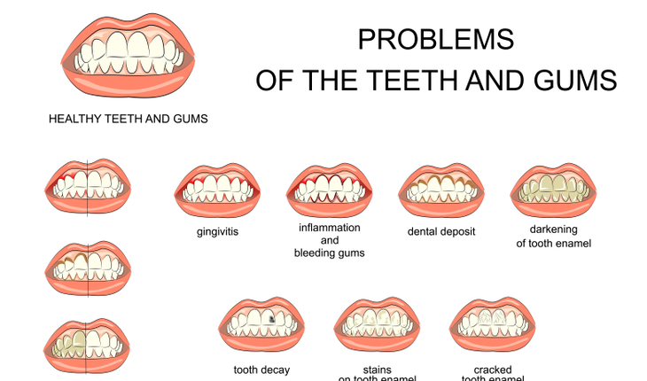 tooth-and-gum-problems