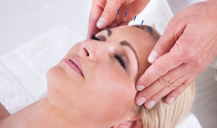 woman-getting-acupuncture
