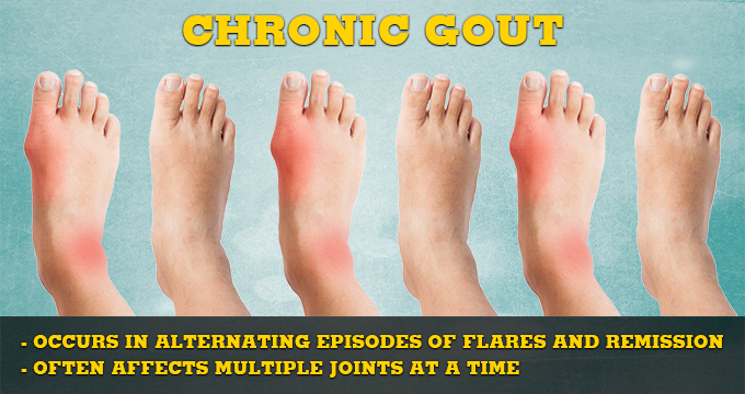 food for high uric acid sodium bicarbonate to lower uric acid treatment for severe gout